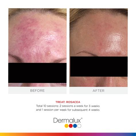 led light therapy before amp after forehead acne back