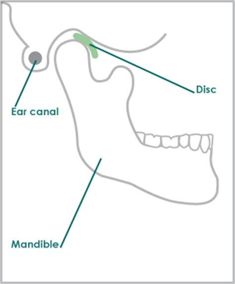 tmj diagram tmj tmd diagrams