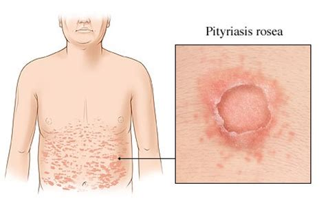 Cool Home Remedy To Clear Up Stress Induced Breakouts 2 by Pityriasis Rosea Pictures Causes Symptoms Treatment