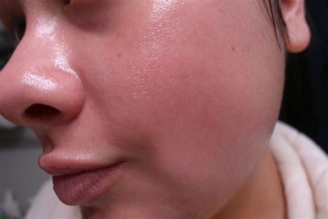 Acne Serum Zahra Skincare Pink my skin care routine part 3 masks spot remedies