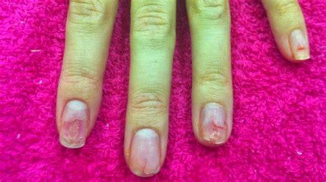 fotos de uñas acrilicas feas entre araucarias crema de lim 243 n para cut 237 culas y u 241 as