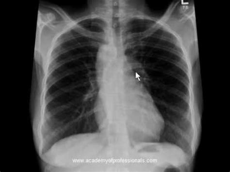 Atherosclerotic Aortic Knob by Chest X Right Sided Aortic Arch