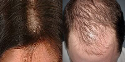female hair loss male pattern baldness 187 cure for female pattern baldness
