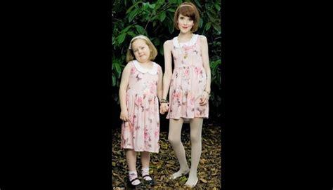 imagenes impactantes de bulimia y anorexia conoce los 10 casos m 225 s impactantes de anorexia fotos