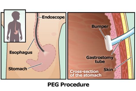 gastrostomy tube (g tube)