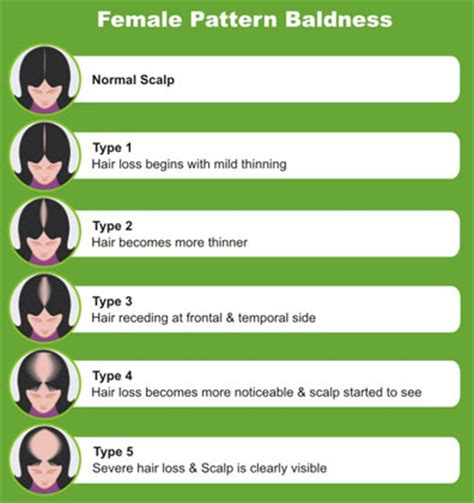 female pattern hair loss and homeopathy female pattern baldness draditis advanced homeopathy