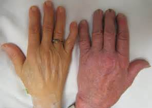 anemia skin color file anemia jpg