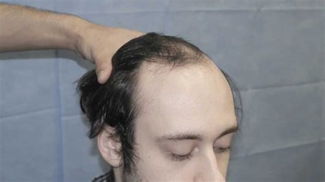 Hair Loss Help Forums Avodart And Panic Attacks Anxiety | thinning hairlines do you girls care social anxiety forum