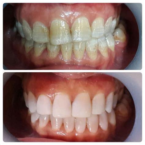 Veneer Pemutih Gigi veneer gigi di depok audy dental