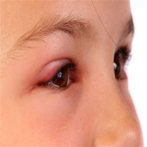 eye allergies 5 easy and simple ways to treat eye allergies with herbs search herbal home remedy