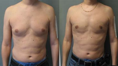 How Can I Check If Someone Has A Criminal Record How To Tell If You Gynecomastia