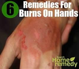 home remedies for burns 6 home remedies for burns on treatments