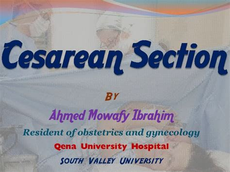 General Anesthesia C Section by Cesarean Section