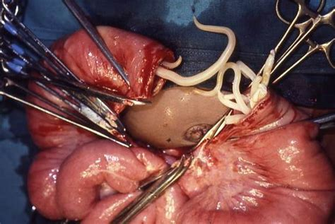 anal after c section worms in human types and pictures new health advisor