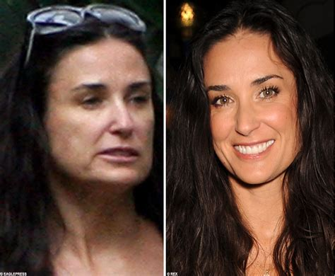 celebrity plastic surgery 24 before after pictures 2015 funny pictures celebrity before and after plastic surgery