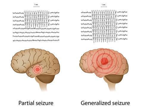 my had a seizure for the time epilepsy special needs