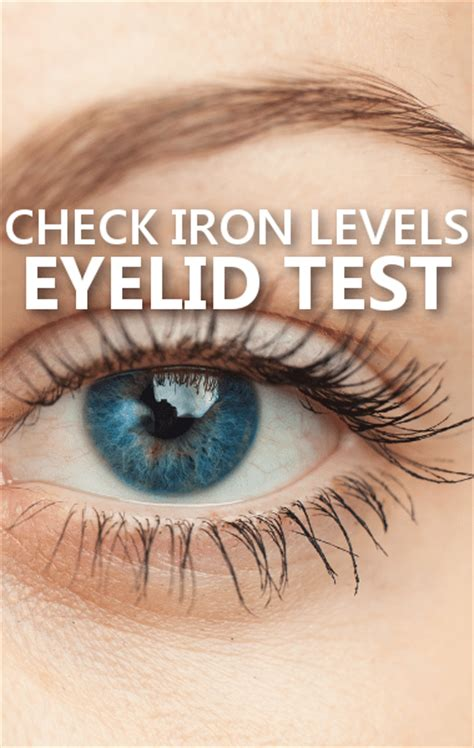 dr oz eyelid iron deficiency test healthy philly