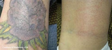 tattoo removal vancouver removal vancouver renew your canvas arion