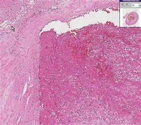 Large Wall Mural histopathology artery thrombus atherosclerotic plaque