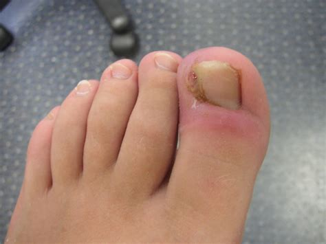 nail infection fungal nail infections 171 sole solutions