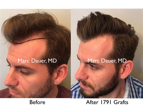 correct haircut transplant bad hair transplant hairstylegalleries com