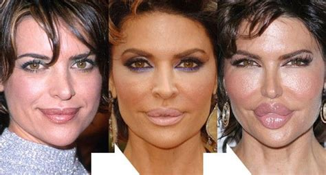 lip implants gone wrong lisa rinna before and after lip implants oh my god