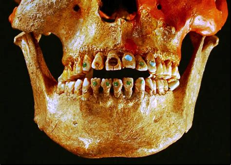 interesting dental history facts paul  griffin dds pa