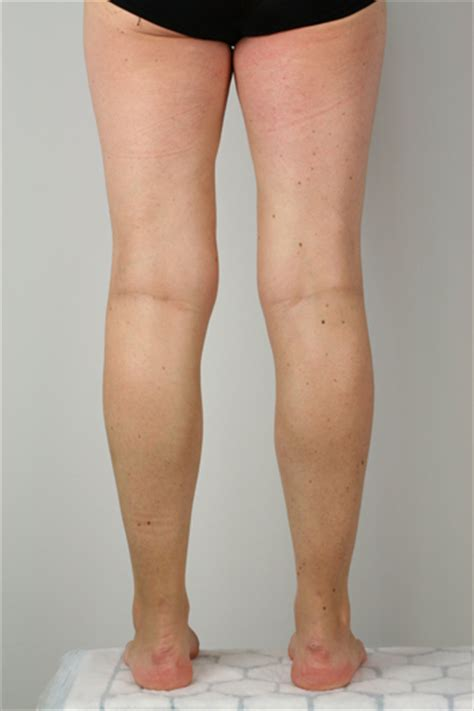 hind leg evla evlt endovenous laser ablation treatment for varicose veins