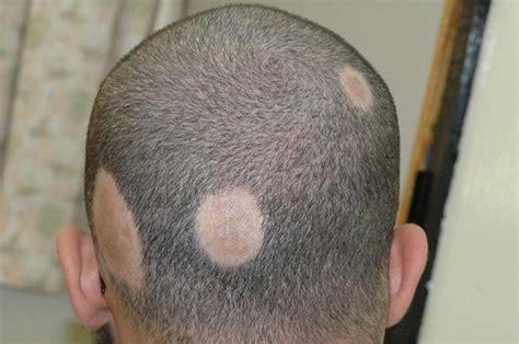 alopecia areata causes types of alopecia you should know