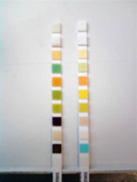 protein 0 15 urine prot 233 inurie et association avec le vih chez l enfant 224