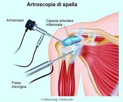 dolore interno spalla tendiniti e calisthenics parte 2 riconoscerle e trattarle