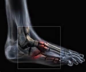 comment soigner fracture de fatigue au pied la r 233 ponse