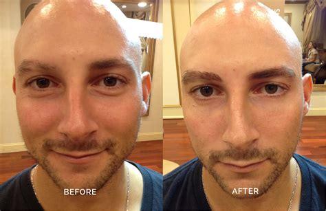 boys with permanent makeup microblading in darien ct versailles medical spa