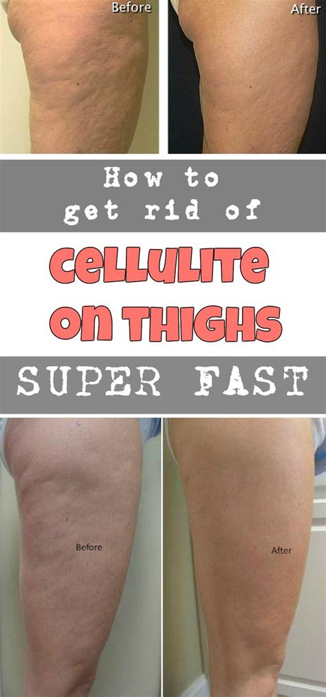Getting Rid Of Cellulite by How To Get Rid Of Cellulite On Thighs Fast