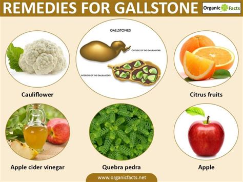 home remedies for gall stones organic facts