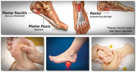 how to get rid of plantar fasciitis how plantar