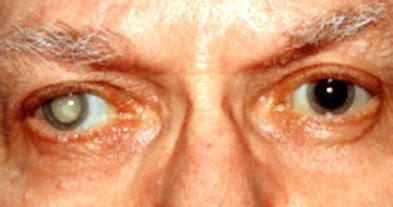 Obat Katarak Tradisional obat tradisional untuk mengobati mata katarak rumah