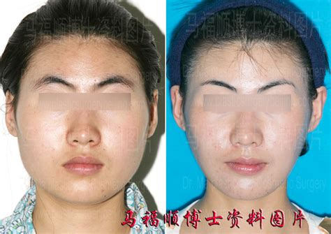 Change Hair Type With Surgery by Reduction Plastic Surgery Homepage Dr Ma