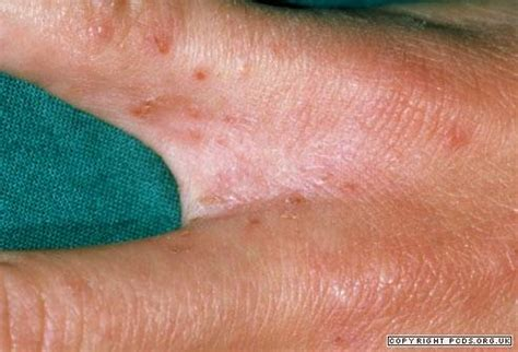scabies black scabies primary care dermatology society uk