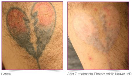 tattoo removal boca raton total and pigmented lesion solution laser