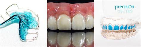 precision teeth gb