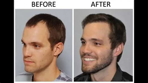 hair transplant before and after before after hair transplant creating more density