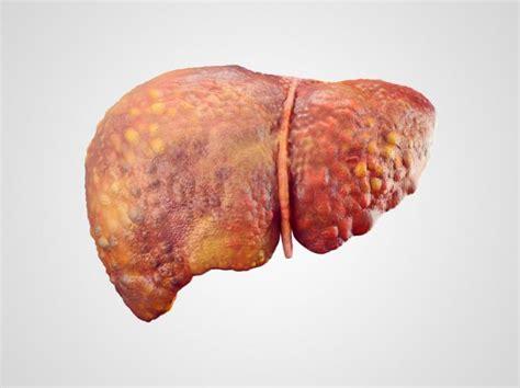 liver cancer liver cancer risk lingers after hepatitis b virus cleared news today