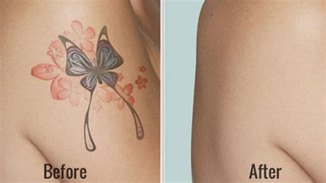 removing tattoo at home how to remove tattoos at home fast 28 ways