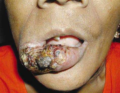 growth on lip carcinoma de c 233 lulas escamosas y orofar 237 ngeo en nuestra poblaci 243 n