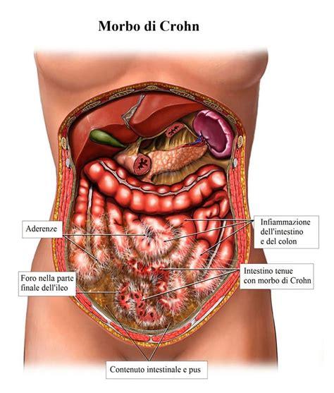 bruciore all interno della dolore al colon sintomi e terapia