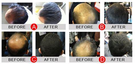 Fully Hair Fiber 23gr Building Concealer Original Like Caboki Shizuku genuine sevich hair bulding fiber concealer 25gm 50gm refill pack caboki toppik biothik