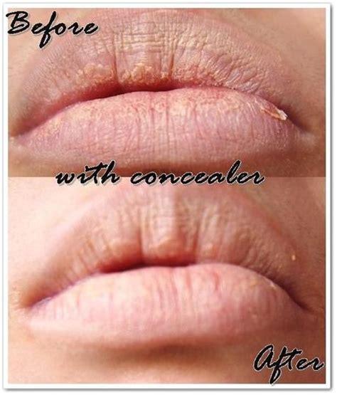 Harga Tony Moly Lovely Lip Patch tonymoly lovely lip patch review paperblog