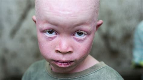 celebrity commodity definition in parts of africa people with albinism are hunted for