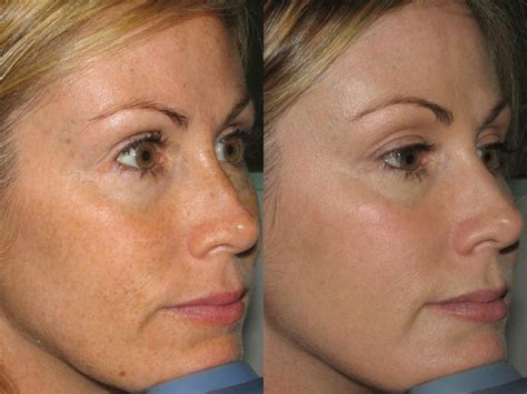 e one ipl session before and after on man and woman face just the beginning of a new you oohlalalaser